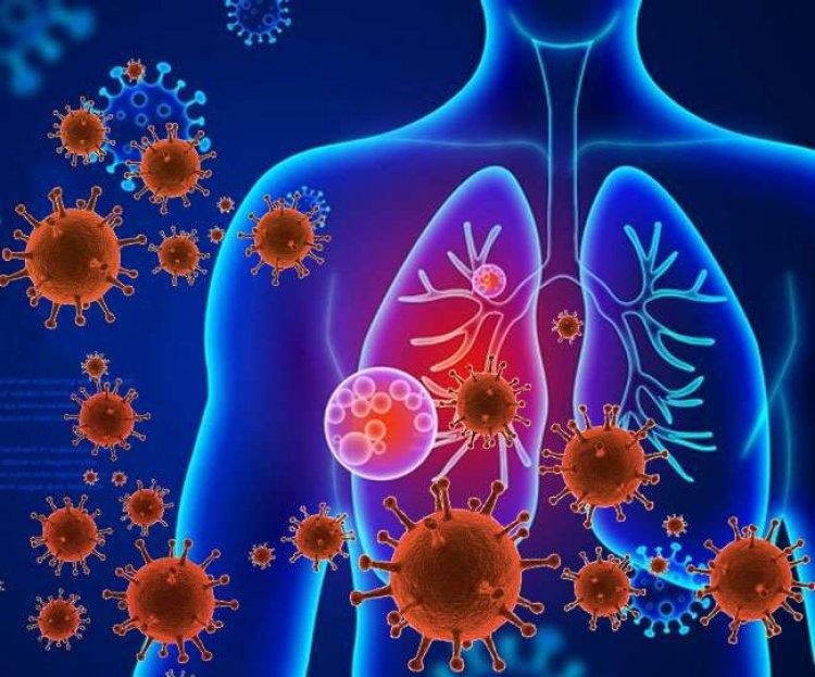 निमोनिया का संक्रमण बन रहा है घातक : डा त्रिवेदी